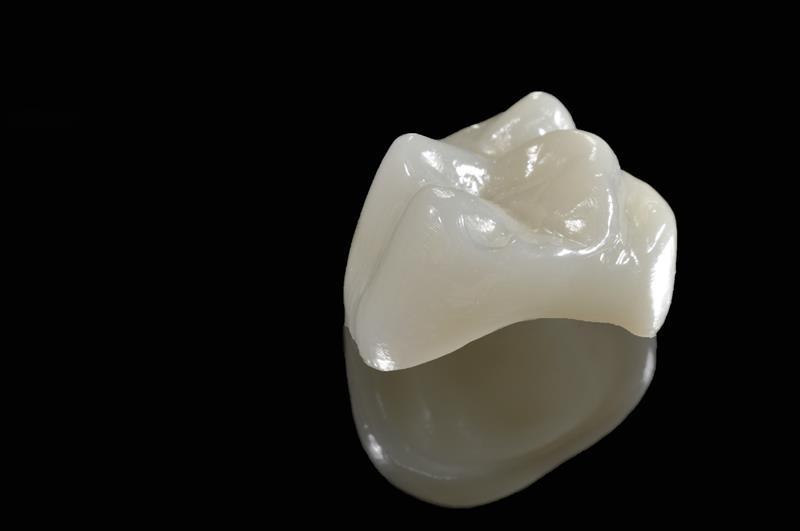 Porcelain Crowns  Riverview, FL