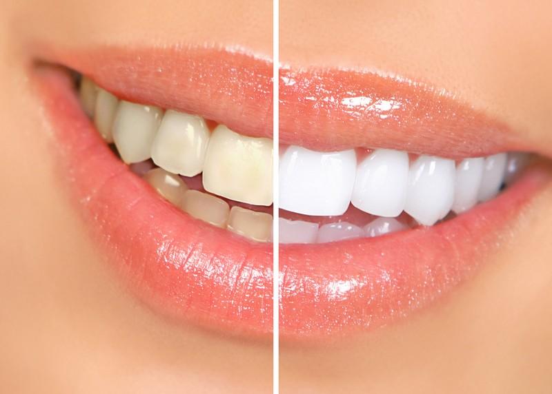 Teeth Whitening  Riverview, FL